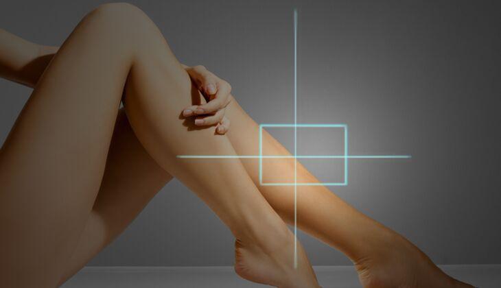 Kosmetische Laserbehandlungen: Körperhaarentfernung