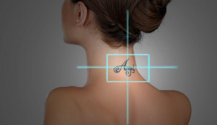 Kosmetische Laserbehandlungen: Tattooentfernung
