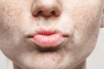 Was Frauen mit Sommersprossen wissen sollten